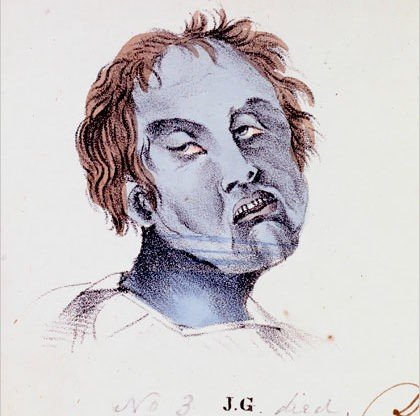 Cholera patient with short messy red hair, pained and distorted facial features, and a sickly blue color to their skin